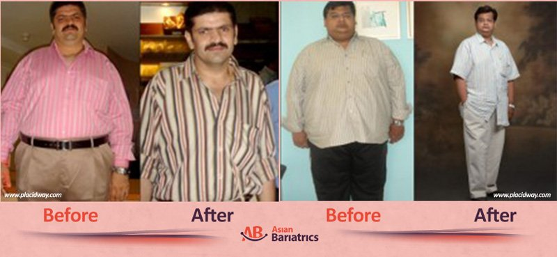 before after bariatric surgery in india men after obesity procedure in ahmedabad by asian bariatrics