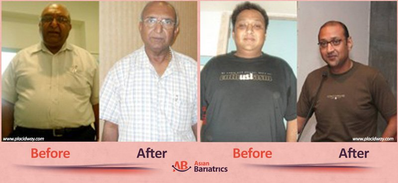 before after bariatric surgery in india men image obesity procedure in ahmedabad by asian bariatrics