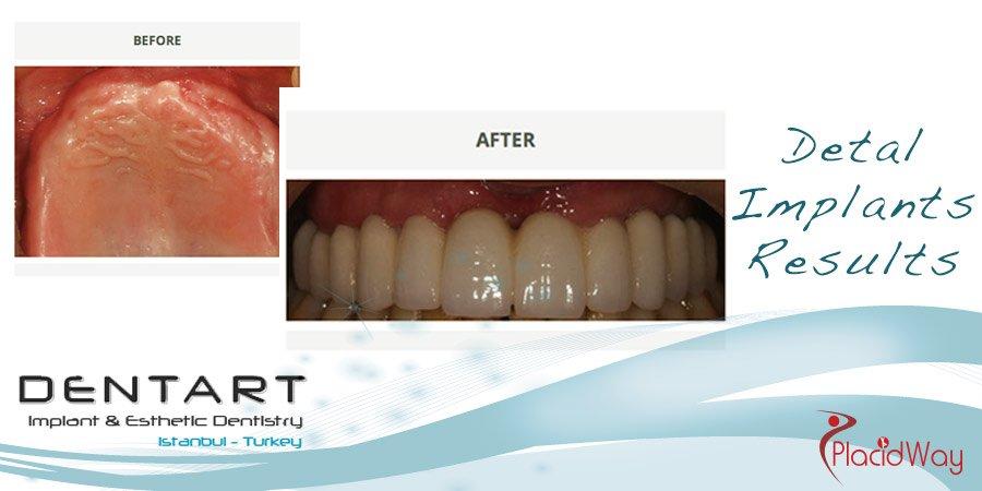 After Dental Implants Photos - Dentart Clinic - Turkey Medical Tourism