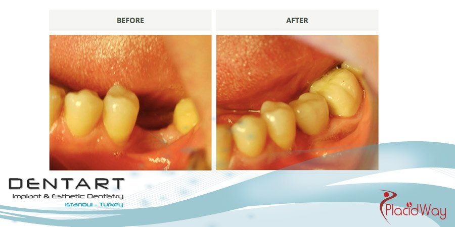 Dentistry Results in Turkey - Before and After Photos - Instanbul Medical Tourism