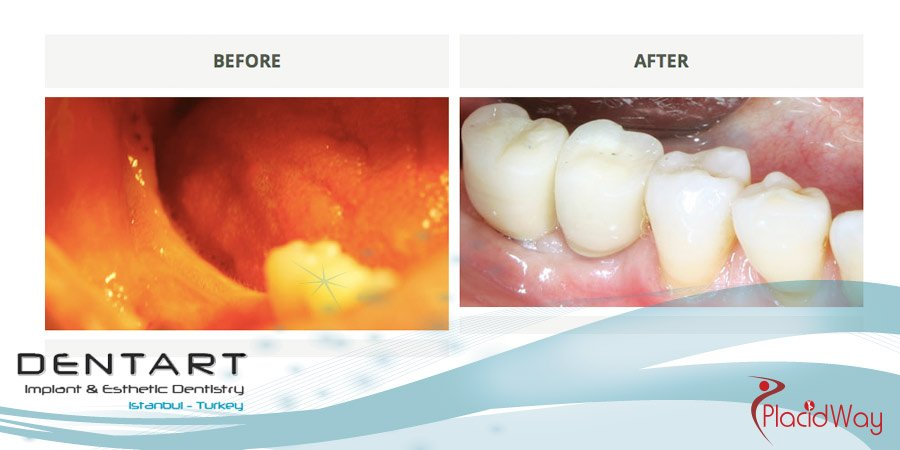 Dental Implants Before and After Pictures - Dental Tourism Turkey