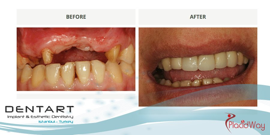 Patient Change with Dental Implants in Turkey - PlacidWay Medical Tourism