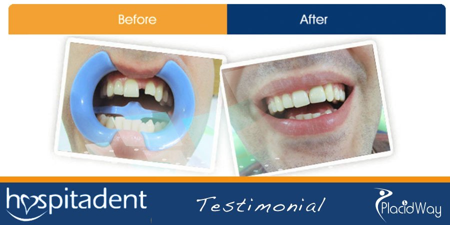 Before and After Picture Testimonials - Dental Implants in Turkey