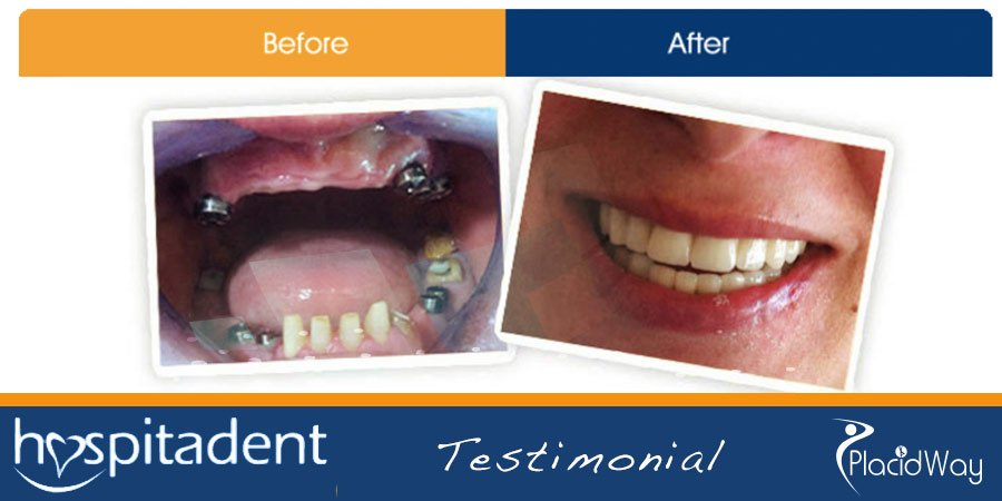 After Dental Implants Surgery in Turkey - Medical Travel