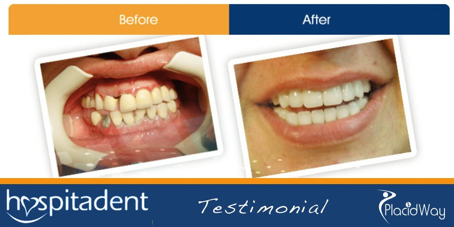 Before and After Dental Implants Photos - Turkey Medical Tourism