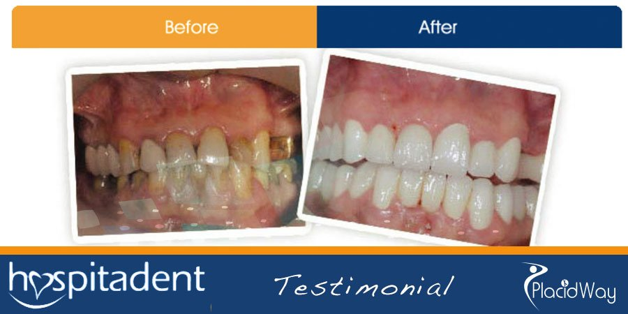 Incredible Change - Before After Pictures - Dental Implants Turkey
