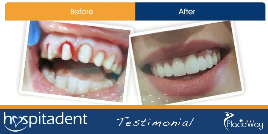 Before After Dental Implants Photo - Travel to Turkey for Dental Care