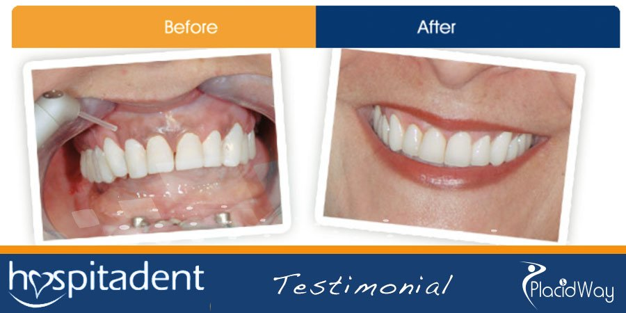 New Smile - After Dental Implants Photos - Istanbul, Turkey