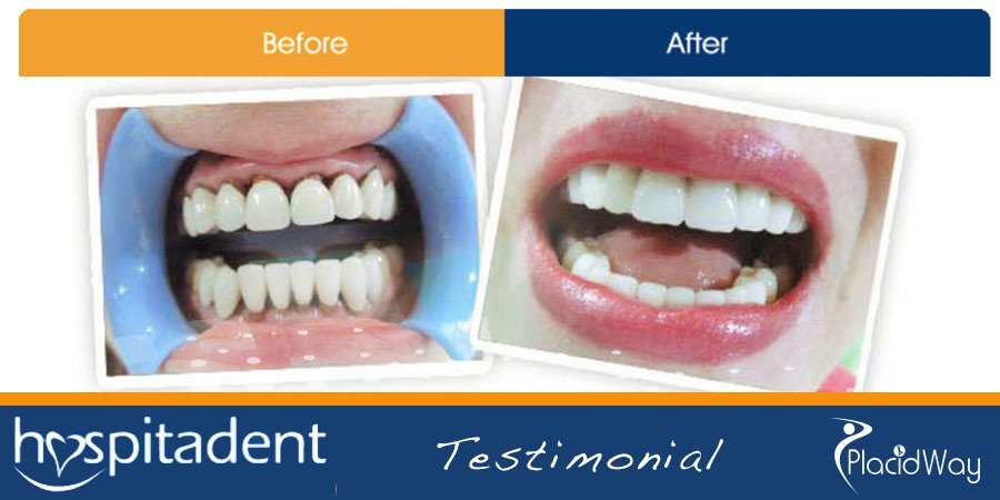 Dental Implants Transformation - Turkey Medical Travel with PlacidWay