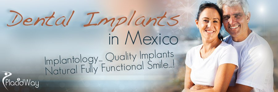 Best Dental Care in Mexico - Quality Implants in Latin America
