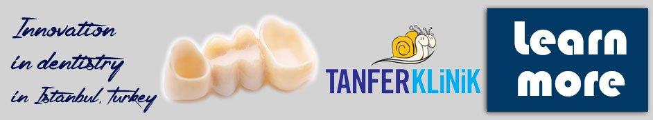 dental crowns in istanbul turkey tanfer dental clinic