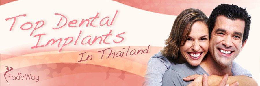 Top Dental Implants in Thailand - Medical Tourism