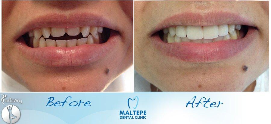 before-and-after-veneers-procedure-in-turkey-istanbul-image1
