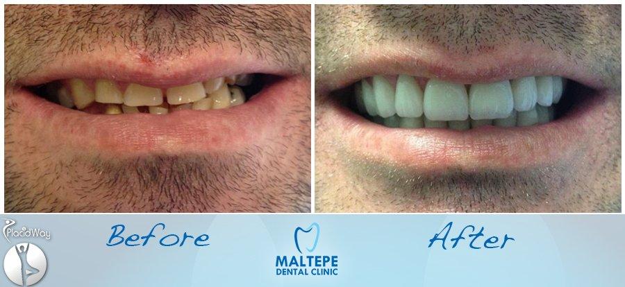 before-and-after-veneers-procedure-in-turkey-istanbul-image3