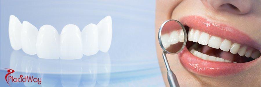 Best Dental Bridges at Smile Studio in Croatia at Affordable Prices banner image
