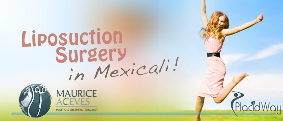 Liposuction Surgery in Mexicali - Mexico medical Tourism