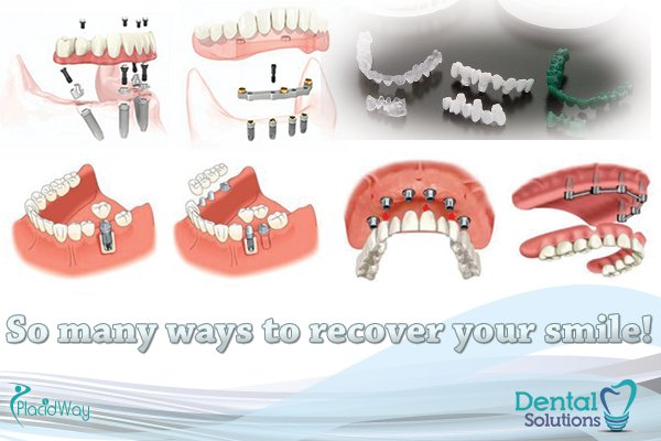 dental-solutions-los-algodones-dentistry work-in-mexico-images-implants