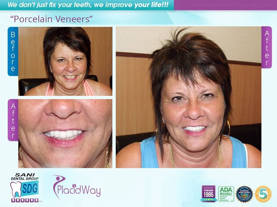 Before After Porcelain Veneers Testimonial in Los Algodones Mexico