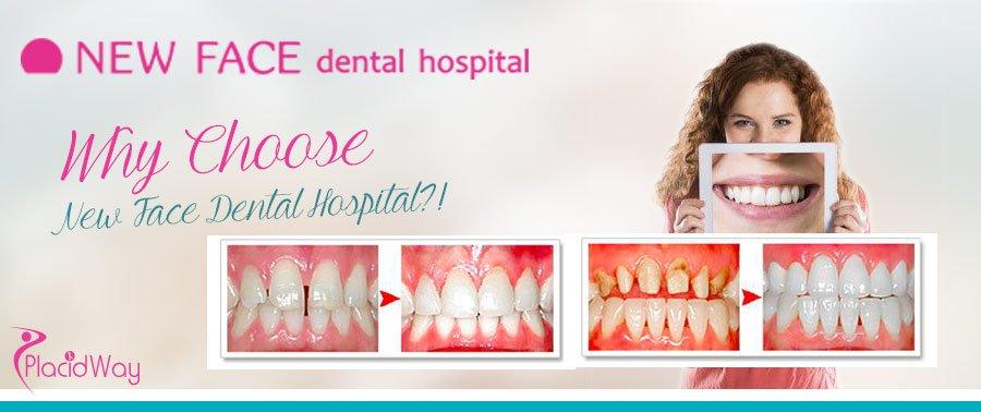 New Face Dental Hospital - Dentistry Transformations - Seoul - Korea
