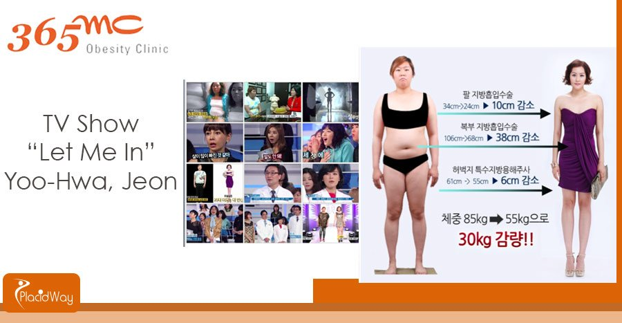 Before and After Surgery - Liposuction Clinic - Seoul, South Korea