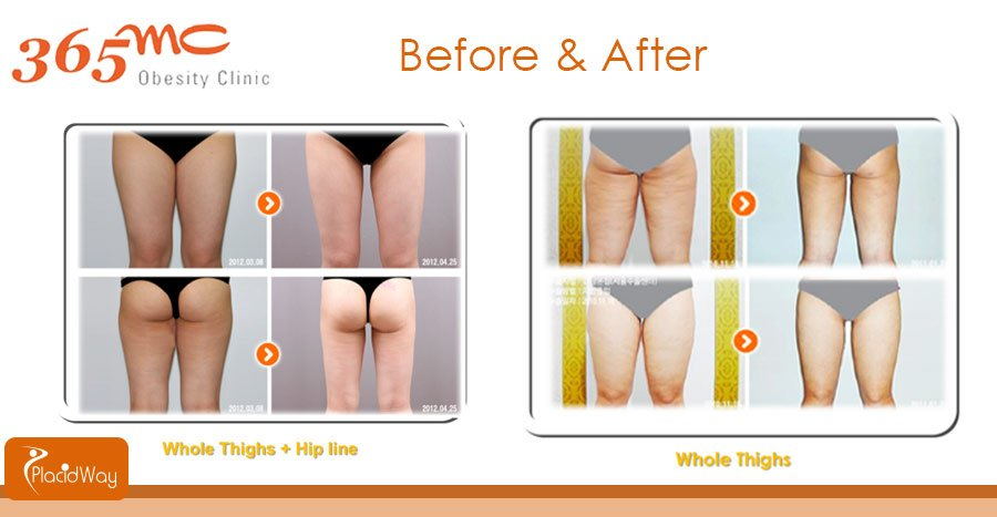 Before and After Whole Thighs Liposuction - South Korea