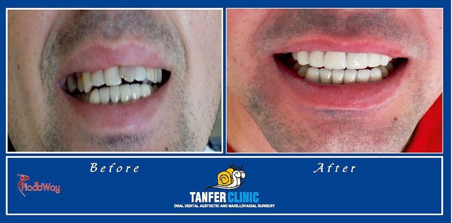Before and After Dental Implants in Istanbul Turkey