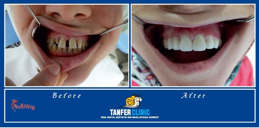 Dental Implants in Turkey Before and After Pictures