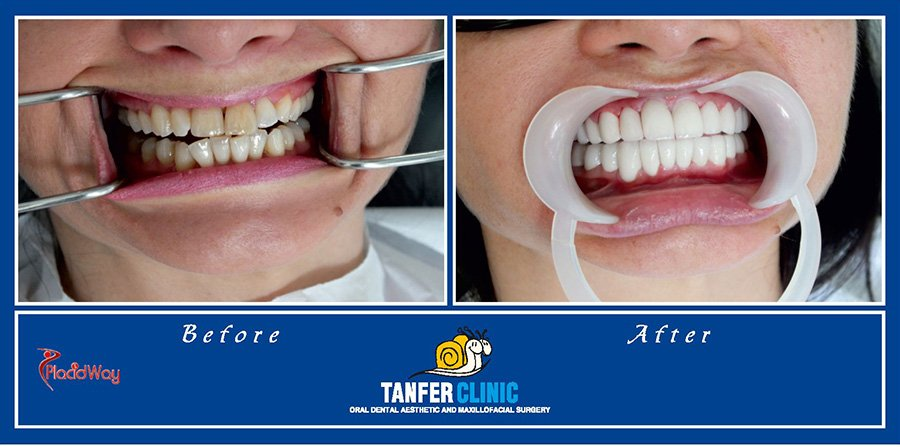 Dental Implants Dental Crowns in Turkey Before and After Images