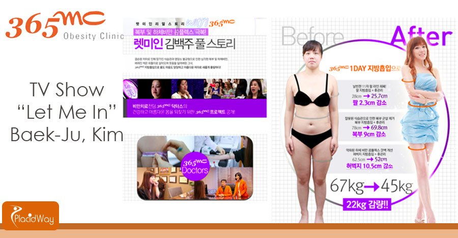 Before and After Liposuction Surgery Pictures in South Korea