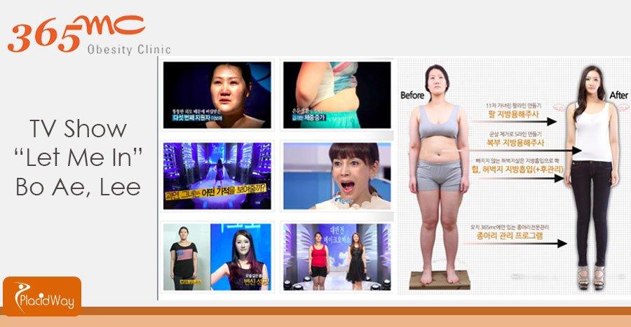 Patient Picture Testimonial After Liposuction Surgery - Seoul - South Korea