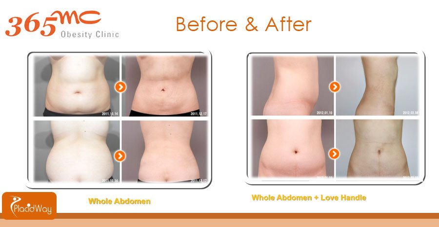 Before and After Whole Abdomen Liposuction South Korea