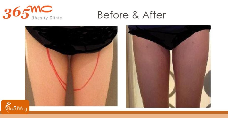 Before and After LAMS Surgery - South Korea