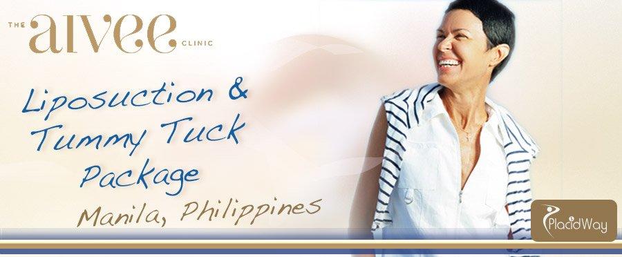 Liposuction - Tummy Tuck -  Aivee Institute  - Manila, Philippines