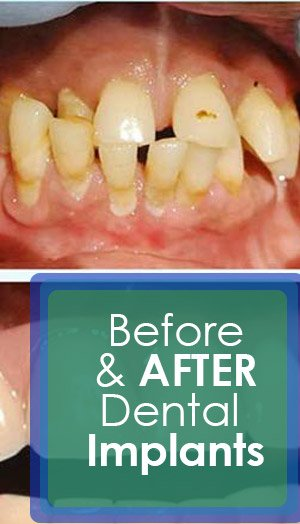 Before & After Dental Implants Mexico