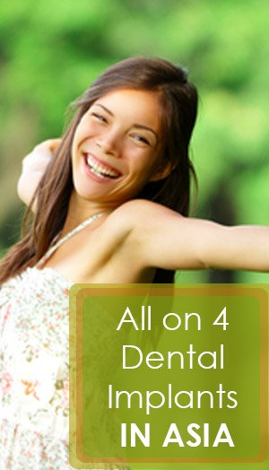 All - On - 4 Dental Implants in Asia