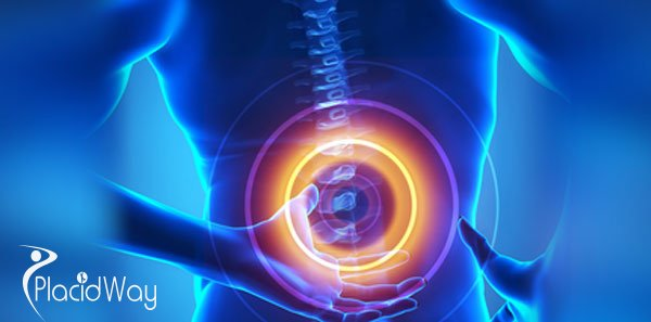 Artificial Disc Replacement Surgery India