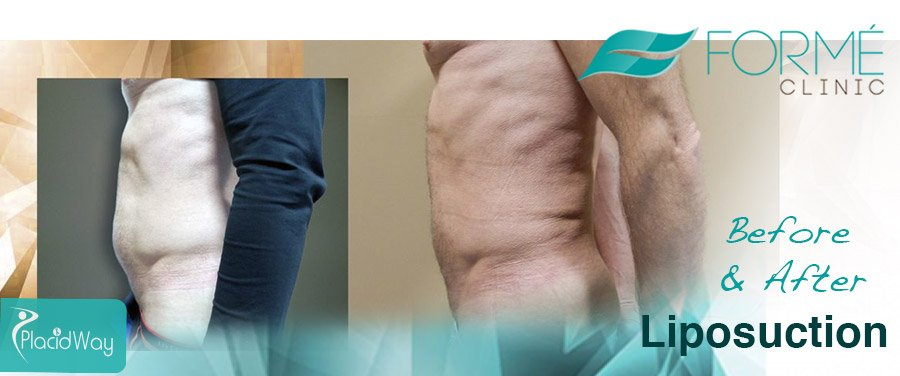 Before and After Liposuction Surgery Prague