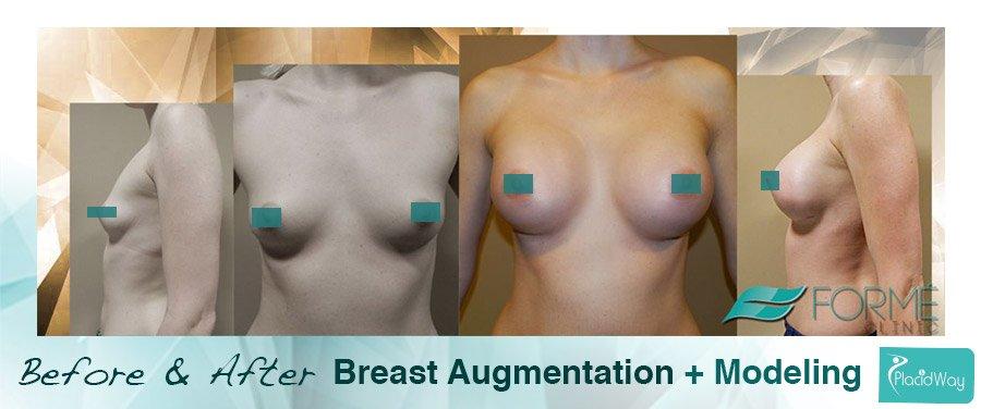After Breast Augmentation Procedure - Europe