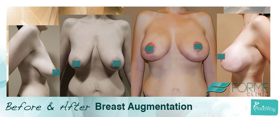 Before After Breast Augmentation Prague