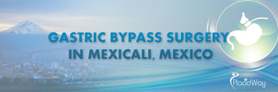 Patient Testimonial Gastric Bypass Surgery Mexico