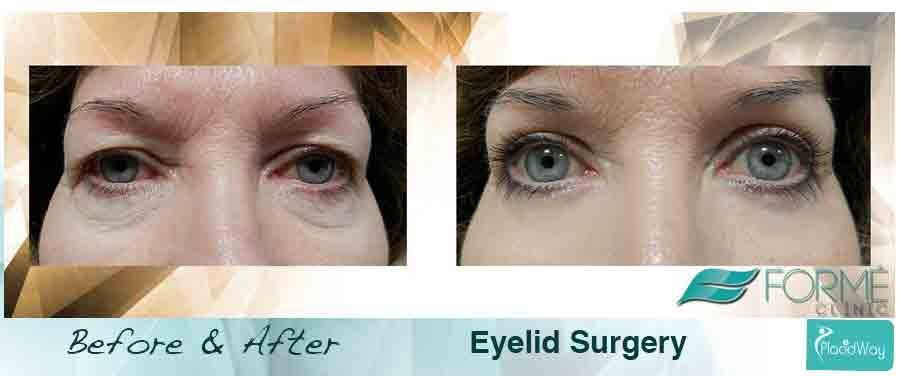 After Blepharoplasty Forme Clinic Czech Republic