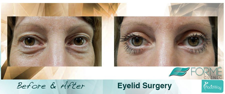 Before After Eyelid Lift Procedure - Patient Result - Prague