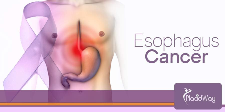 Esophagus Cancer Treatment Overview