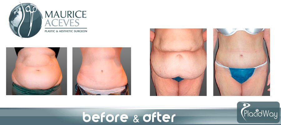 8072c069fa20d Before and After Pictures Tummy Tuck Mexicali