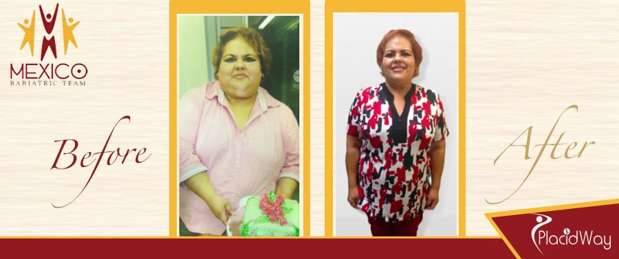 Before & After Bariatric Surgery Testimonial Mexicali