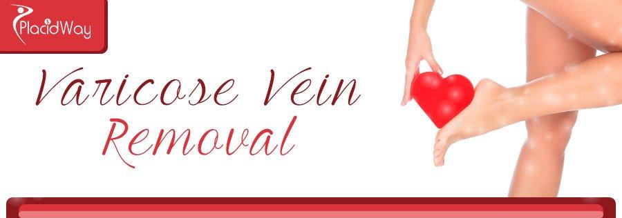 Varicose Vein Removal Surgery