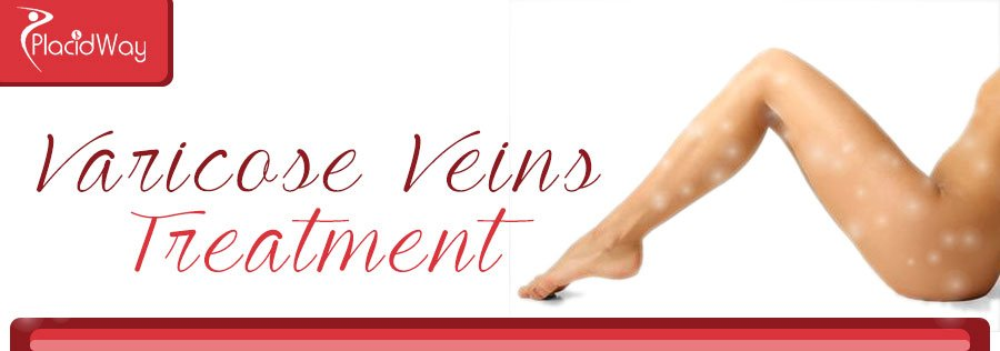 Varicose Veins Treatment Abroad