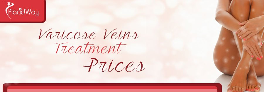 Prices Varicose Vein Removal