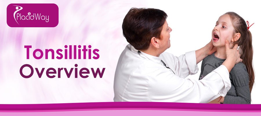 Tonsillitis Information | Tonsillectomy Procedure Abroad