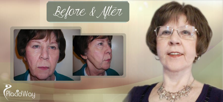 Before & After Face Lift Patient Result Mexico